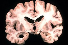 This shows brain slice from an alzheimer's patient.