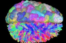 Image of a colorful brain.