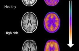 Brain scans of people at risk of developing schizophrenia.
