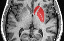 Image of a brain scan with the striatum highlighted in red.