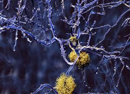 Image of amyloid plaques.