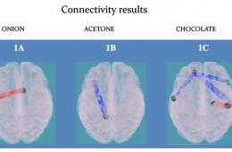 Image shows brain connections in normal weight and obese children.