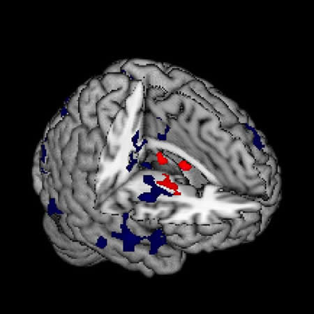 Brain Map Shows How Schizophrenia Symptoms are Linked to Distinct Neural Circuits