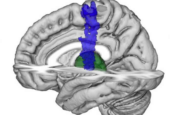Image shows the location of the thalamus and pmc in the brain.
