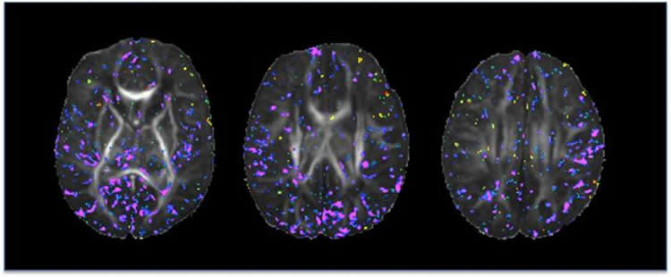 Brain scans from newborn babies. The caption best describes the image.