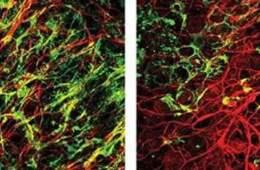 Image shows myelinated and demyelinated neurons.