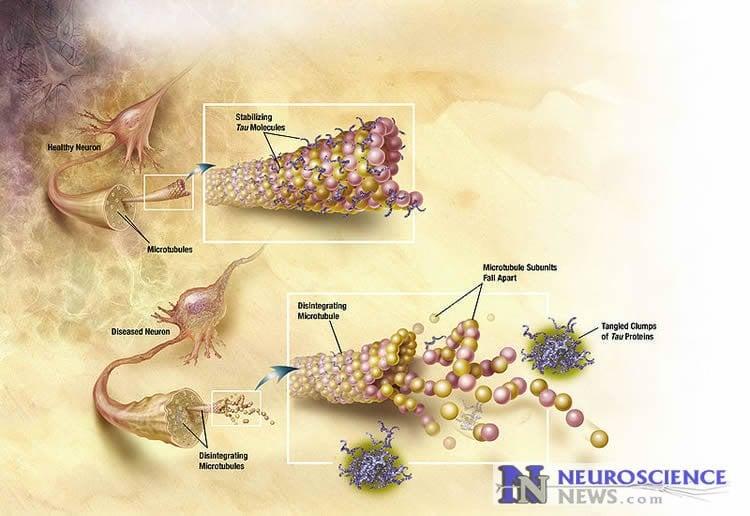 Diagram of Tau tangles in Alzheimer's disease.