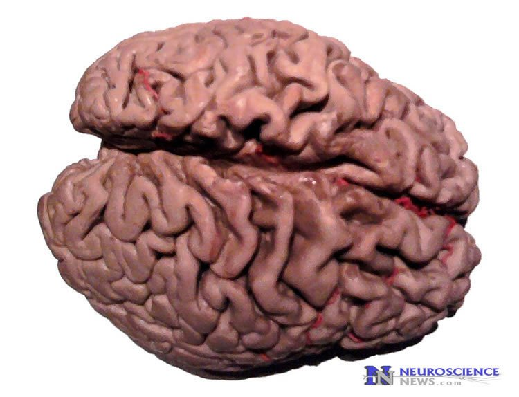 Slower Mental Decline Linked to Higher Amounts of Growth Factor in the Brain
