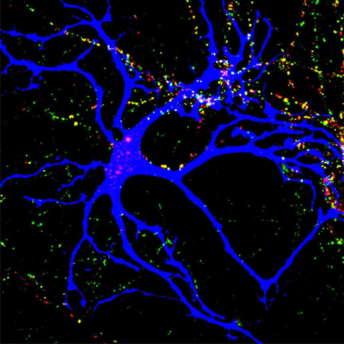 Autism Linked Proteins Help Wire the Brain