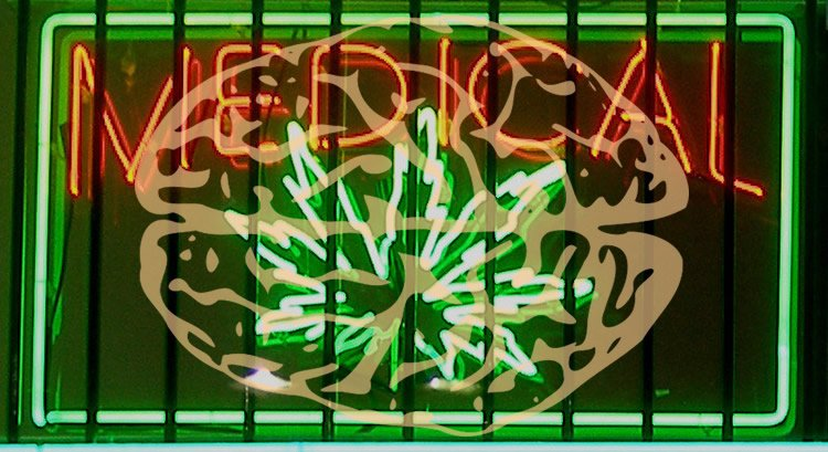 Image shows a medical marijuana shop sign with a picture of a brain over the top.
