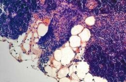 Image shows fatty cells in the aging thymus.