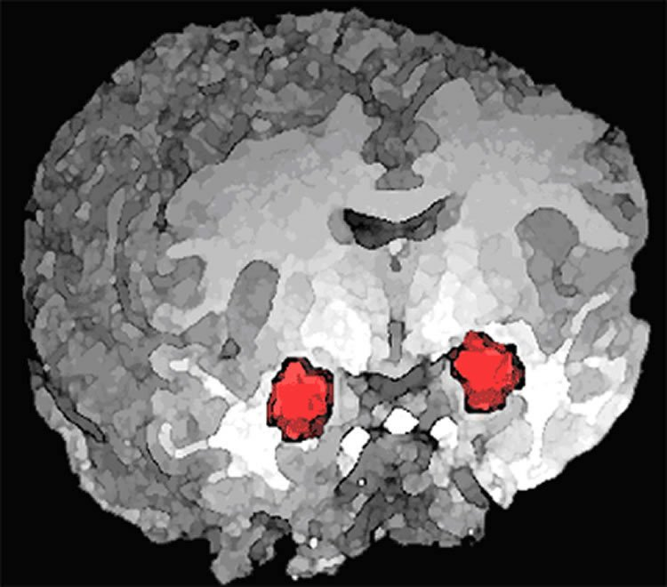 How Drugs and Alcohol Can Hijack Your Brain