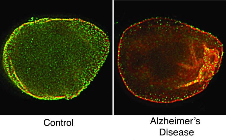 Image shows a cell nucleus from a health and alzheimer's brain.