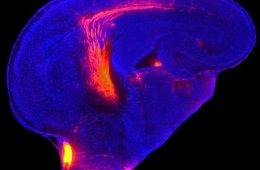 Image shows the forebrain. The caption best describes the image.