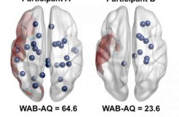 Image shows 2 brains with dots to represent rich club nodes.