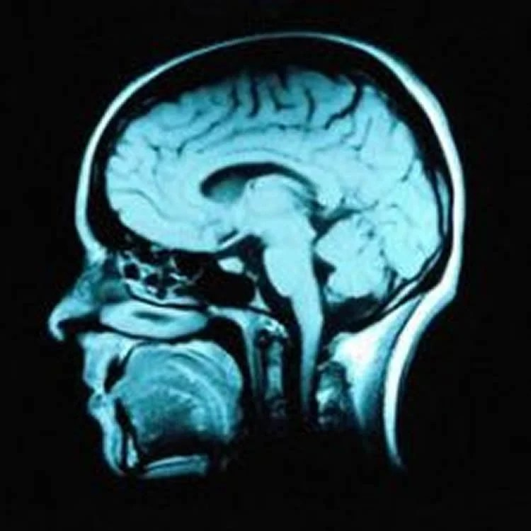 Novel Neuroprotective Therapy Found to Enhance Memory