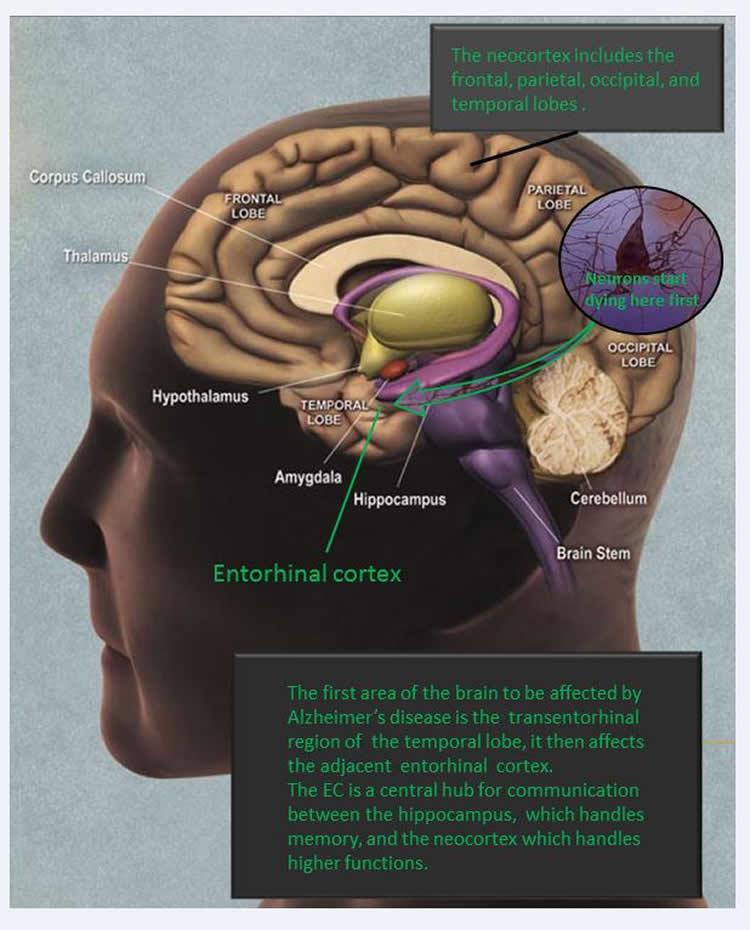 Researchers Suppress Alzheimer\'s Associated Neuronal Death and ...