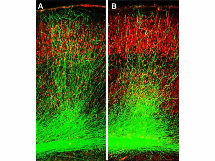 This image shows the stunted growth of neuronal branches.