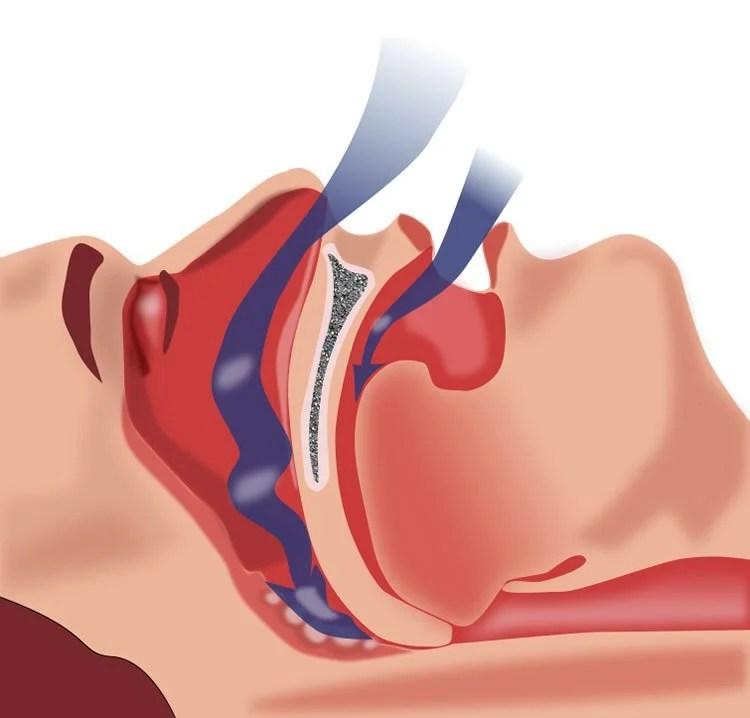 Diagram shows how breath is obstructed in sleep apnea.