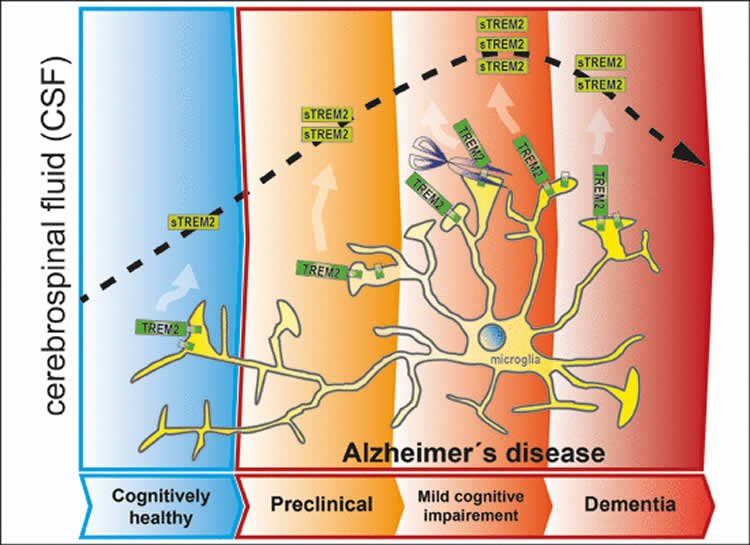 Early Biomarkers for Alzheimer's Defined
