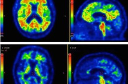 PET scans show AB spots in the brain of an Alzheimer's patient.
