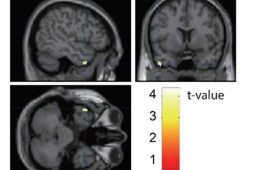 Image of brain scans with the middle temporal gyrus highlighted.