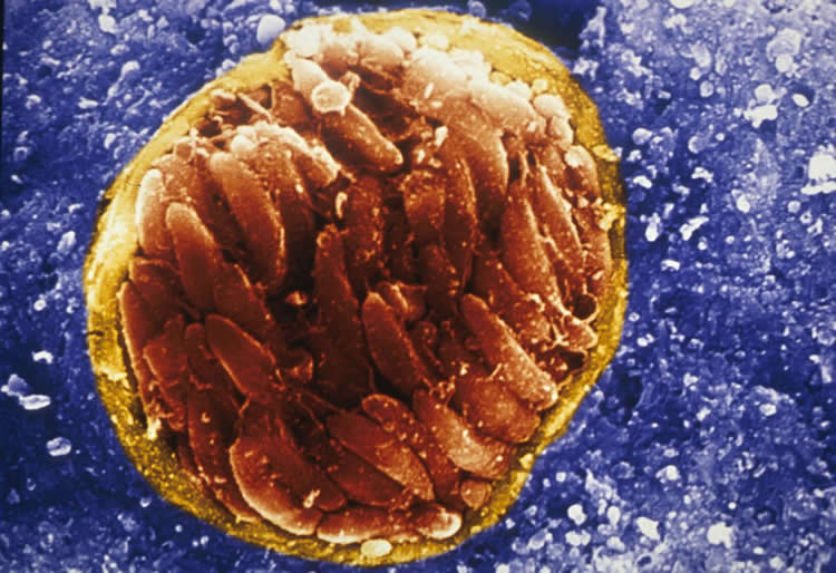 Image shows the protozoan parasite Toxoplasma gondii.