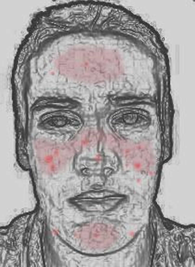 Drawing illustrates red areas of rosecea on a man's cheeks and forehead.