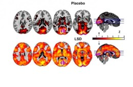 Image shows brain scans from the study.