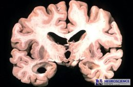 Image shows a brain slice from an Alzheimer's patient.