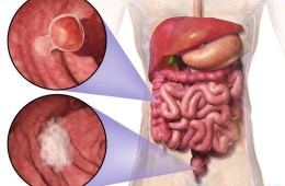 Image shows location and appearance of two example colorectal tumors.