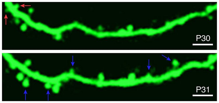 Image shows neuronal spine remodeling.