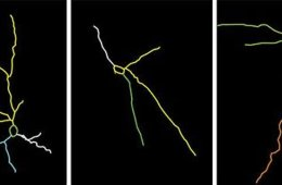 Image shows neurons in the amygdala.