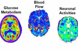 Image shows alzheimer's brain scans.