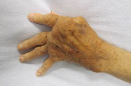 Photo of hand of a person with RA.