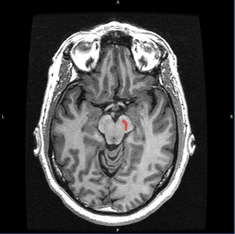 Image shows the location of the substantia nigra in the brain.