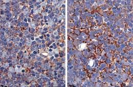 Image shows tissue with scrapie.