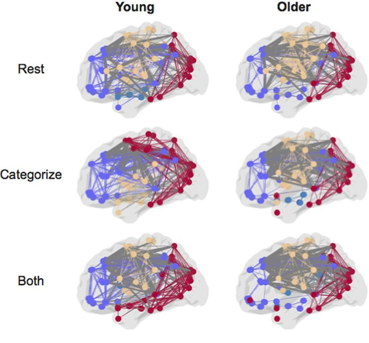 Image shows brain networks.
