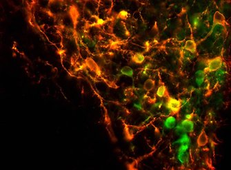 Image shows th neurons.