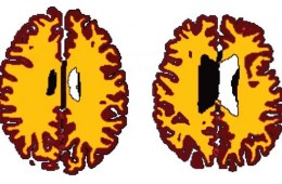 Image shows two brain scans.