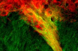 Image shows dopamine producing neurons in the SN.