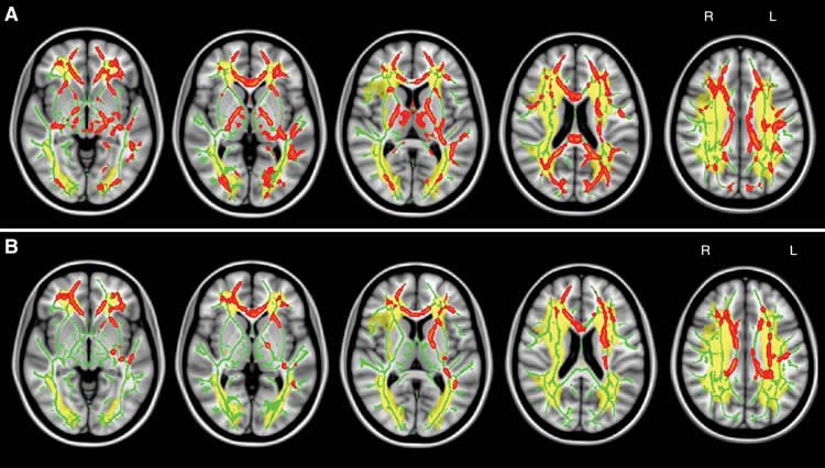 Image shows brain scans of white matter.