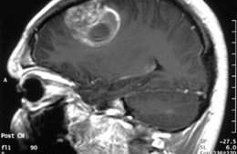 Image shows an MRI brain scan of a glioblastoma patient.