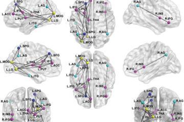 Image shows brain scans.