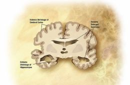 Image shows a diagram of an Alzheimer's brain slice.