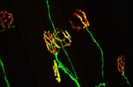 Image shows synapses.