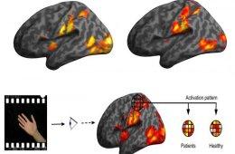 brain scans are shown.