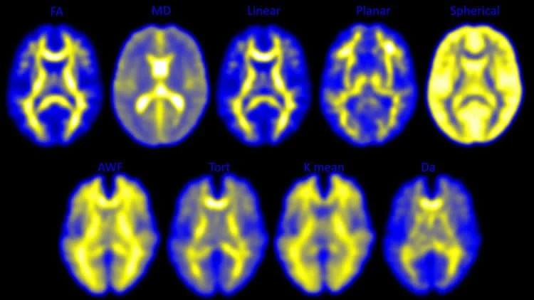 Image shows DTI images of a concussed brain.