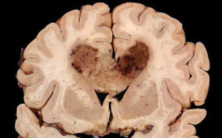 Image shows a brain slice with a glioblastoma brain tumor.