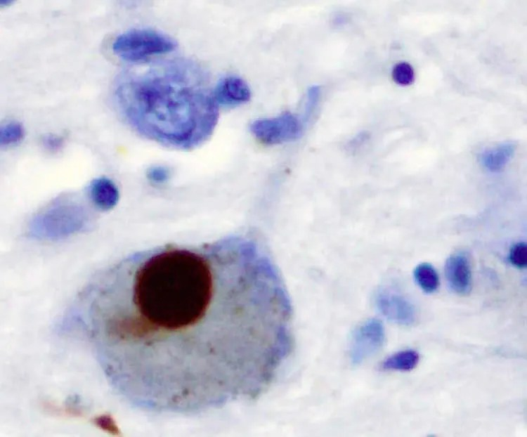 Image shows Lewy bodies.